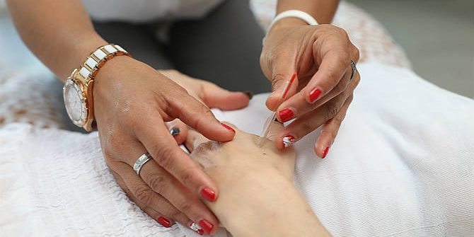 Acupuncture - Alternative Healing Therapies